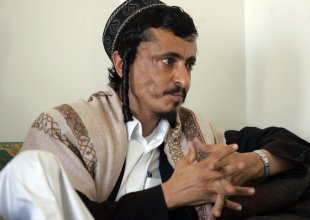 Jewish rabbi Yahya Youssef Moussa, listens during an interview with Reuters in Sanaa in this August 16, 2009 file photo. (Reuters)
