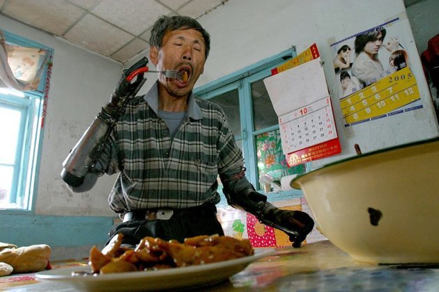 "After the accident, Sun Jifa, 51, of Guanmashan, Jilin province, in northern China, desperately needed to work on his family farm, according to the Daily Mail. ""I survived, but I had no hands,"" he explained. (EuroPics/CEN)"