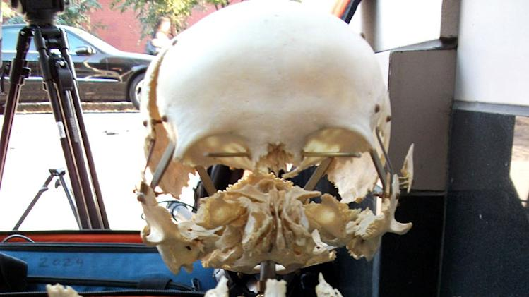 "Exploded skull as seen on ""Oddities."""