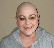 I decided to shave my head after chemo caused my hair to start falling out in chunks. This is my new look.