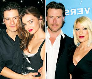 Orlando Bloom, Miranda Kerr Split, Dean McDermott Clarifies Vasectomy Quote: Today's Top Stories