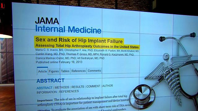 Hip replacement study: Women face higher risk of failure