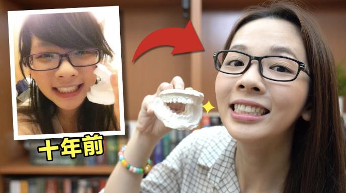 公開10年前照片! 滴妹戴牙套的辛酸史!