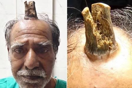 Fenômeno raro: indiano ganha chifre após bater cabeça - Foto: Reprodução