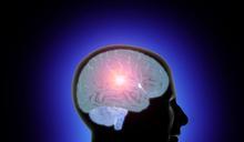 【Yahoo論壇】出現3大警訊 小心腦瘤上身