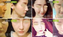 精雕鵝蛋臉,女性美再升級 美形削骨手術 雕琢明星級俏臉