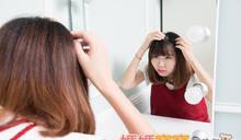 孕期常見頭皮與頭髮問題