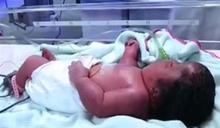 孕婦憂流產…打百針保胎竟生出畸形嬰