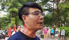 抗議中國選秀節目佔用操場 台大生遭統派團體黑衣人毆打流血