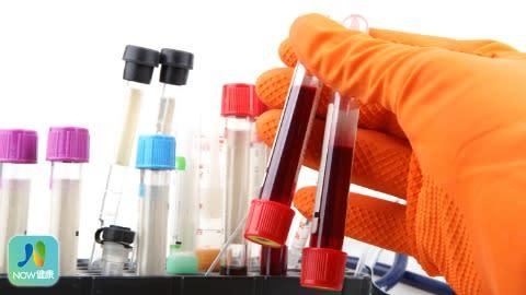 血型影響感染武肺風險?  研究員出面說話了